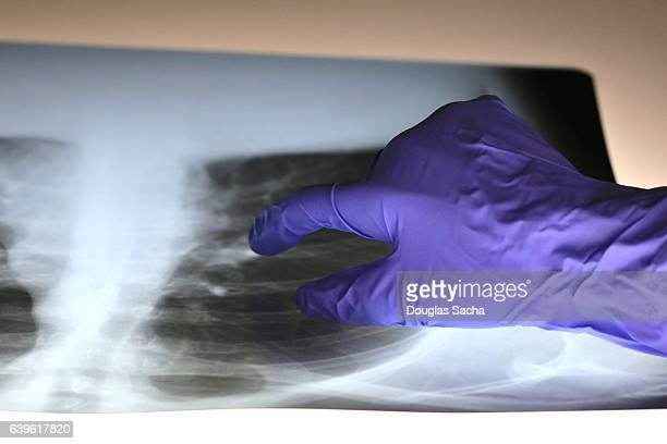 pulmonologist doctor examines x-ray image of a patient's lungs and respiratory tract - copd stock photos and pictures