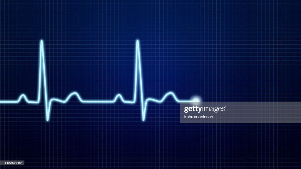 EKG Pulse Waveform : Stock Photo