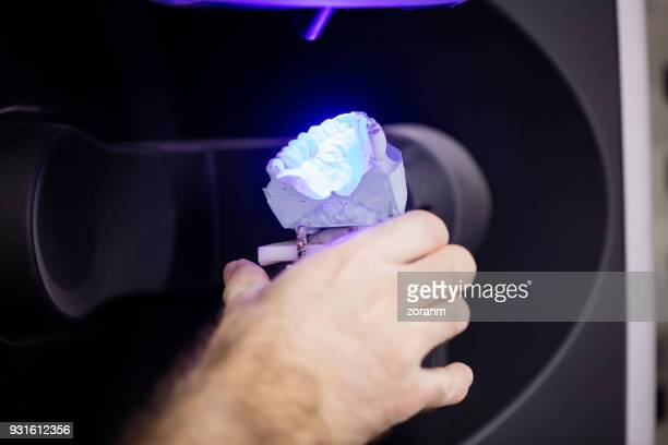 Putting denture on 3D scanner