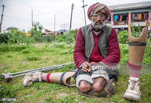 Qalander Khatana a torture victim poses with his amputated and prosthetic legs on August 8 2016 in Srinagar the summer capital of Indian administered...