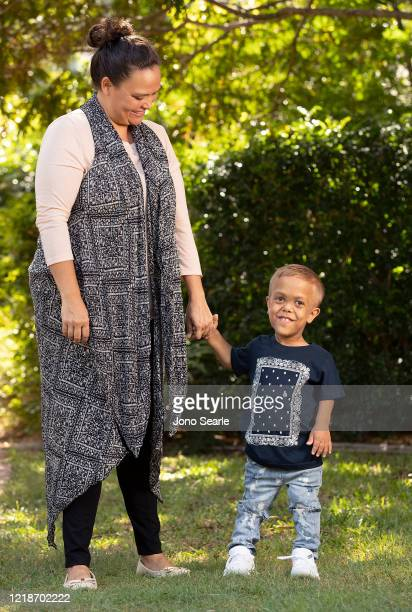 Quaden Bayles poses for a portrait with his mother Yarraka Bayles on April 13, 2020 in Brisbane, Australia. 9-year-old Quaden Bayles, who born with...