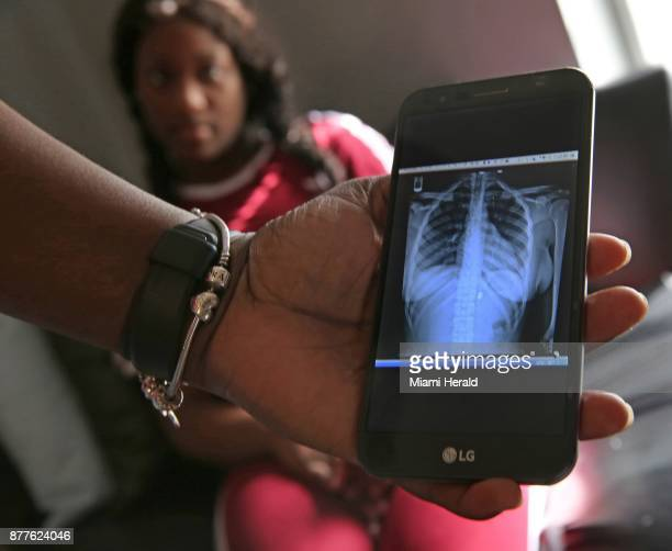 Quanisha Hepburn's mother shows an xray of a bullet still lodged in her 18yearold daughter's body Quanisha was an innocent bystander who was shot...