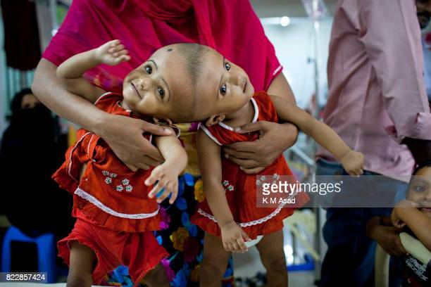 Rabia and Rukia a Bangladeshi conjoined baby girls stay a hospital at Dhaka Delivered by caesarean at the PDC Clinic in Pabna they were born joined...