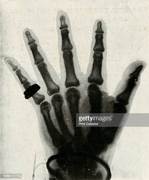 Radiograph of the Hand of H.R.H. The Prince of Wales', . X-ray of the future King Edward VII's hand. 'By permission of G. Houghton & Son'. From Sixty...