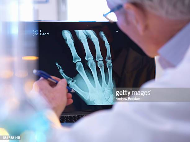 Radiographer looking at x-ray of hand fracture