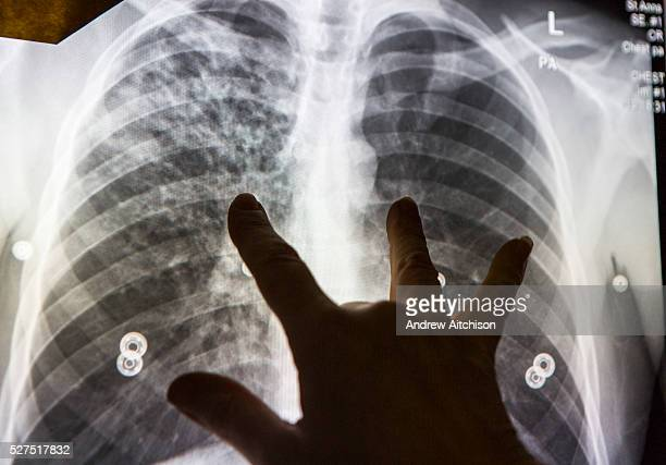A radiographer reviews an abnormal chest xray and demonstrates the showing that suggests active tuberculosis disease An abnormal digital chest xray...