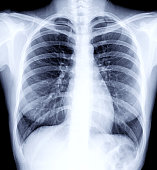 Radiographic image or X-Ray Image of Human Chest for a medical diagnosis . check up concept.