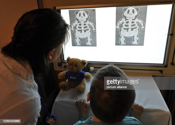 Radiographs of injured soft toys hang on a lightbox at the 11th Teddy Hospital in Dresden Germany 14 April 2014 120 students receive up to 1000...