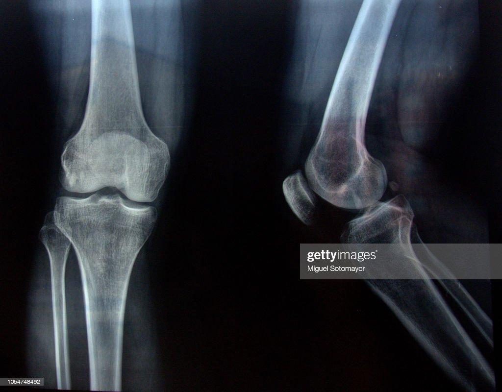 Radiography : Stock Photo
