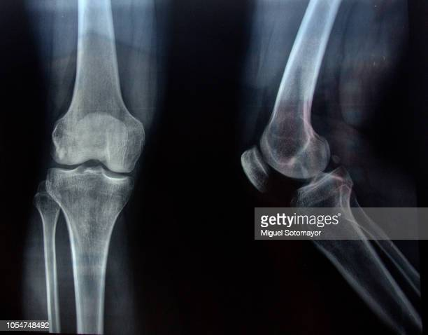 radiography - x ray image stock pictures, royalty-free photos & images