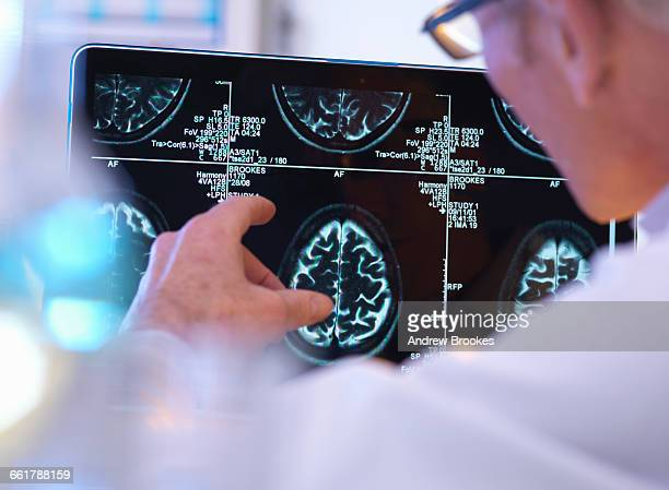 radiologist assessing ct brain scan - human nervous system stock pictures, royalty-free photos & images