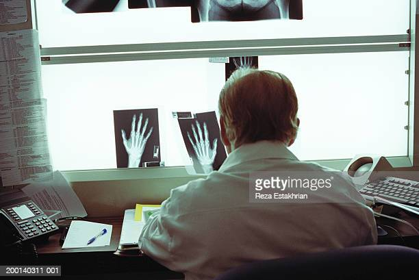 Radiologist looking  x-rays of hands, rear view