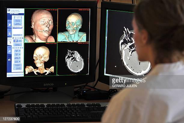 A MARSEILLE DES AUTOPSIES VIRTUELLES AU SERVICE DE LA JUSTICE ET LA SANTE A radiologist looks at the scans of a reconstituted corpse in 3D in order...