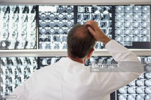 Radiologist scratching his head while looking at diagnostic images