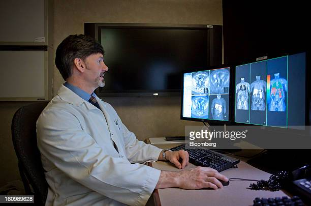 Radiologist Val J Lowe director of the cancer imaging program at the Mayo Clinic cancer center compares a CT scan to a choline C11 PET scan of a...