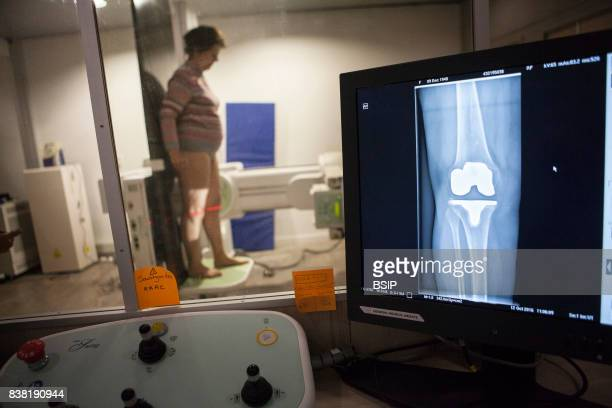 Radiology center France patient with a knee prosthesis has a checkup xray
