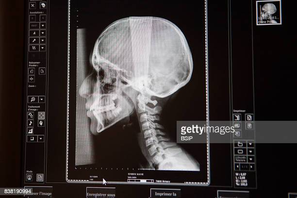 Radiology center in HauteSavoie France The results of a teenage girlÕs cranial xray