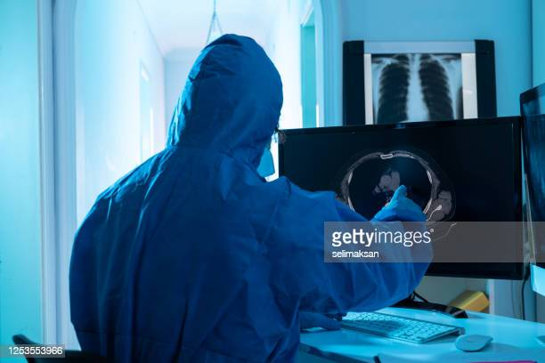 radiology doctor wearing lab coat and checking abdominal ct image on computer monitor - tomography stock pictures, royalty-free photos & images
