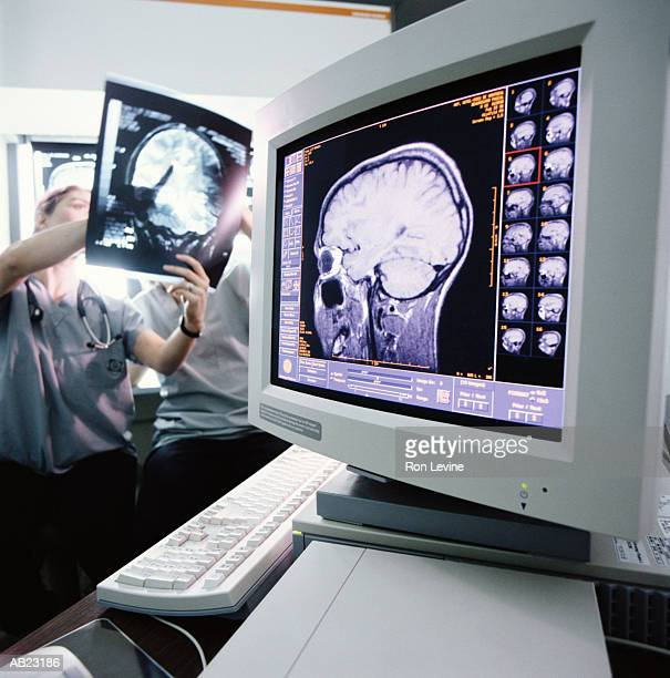 radiology staff studying mri scans - mri scan stock pictures, royalty-free photos & images