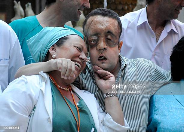 Rafael hugs a nurse after undergoing a face transplant at Sevilla's Hospital Virgen del Rocio on May 4 2010 in Sevilla The second patient to have...