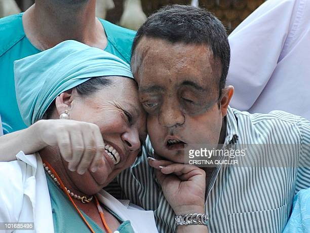 Rafael hugs a nurse after undergoing a face transplant at Sevilla's Hospital Virgen del Roci­o on May 4 2010 in Sevilla The second patient to have...