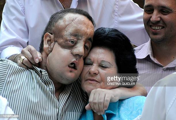 Rafael hugs his mother after undergoing a face transplant at Sevilla's Hospital Virgen del Roci­o on May 4 2010 in Sevilla The second patient to have...
