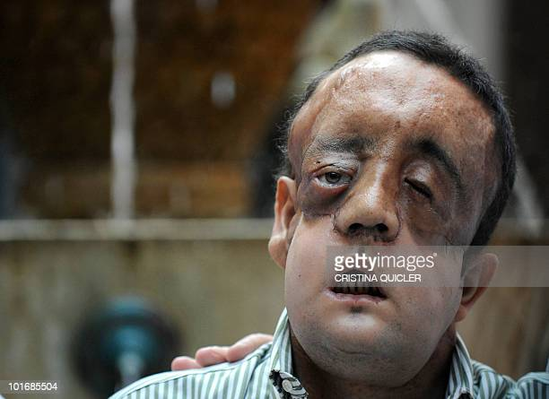Rafael poses after undergoing a face transplant at Sevilla's Hospital Virgen del Rocio on May 4 2010 in Sevilla The second patient to have undergone...