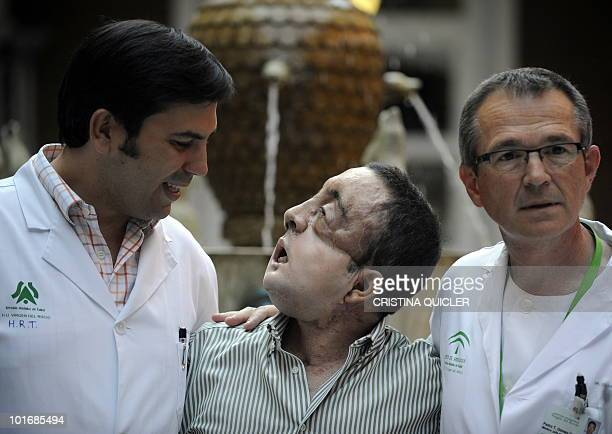 Rafael poses with doctor Tomas Gomez Cia head of the plastic surgery unit after undergoing a face transplant at Sevilla's Hospital Virgen del Roci­o...