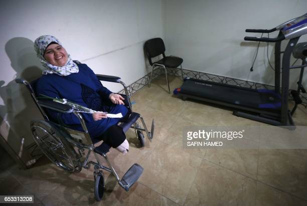 TOPSHOT Rahmah Idres a 18yearsold displaced Iraqi woman from Mosul who lost her legs in a November 2016 mortar attack by Islamic State group fighters...