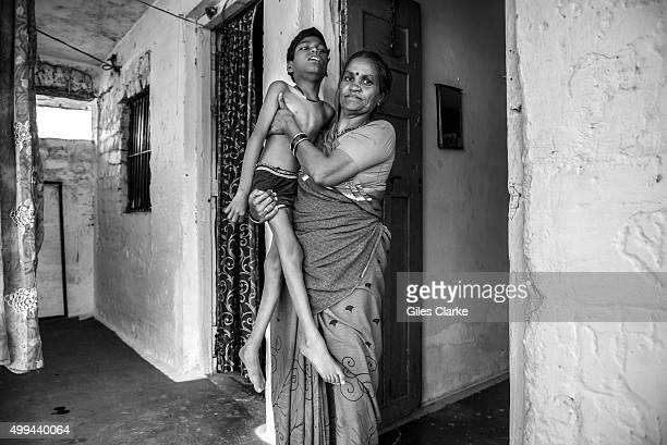 Raj 10 years old with his mother Puna Bai at home in the Shankar Nagar neighborhood Humera was born to parents contaminated by a carcinogenic and...