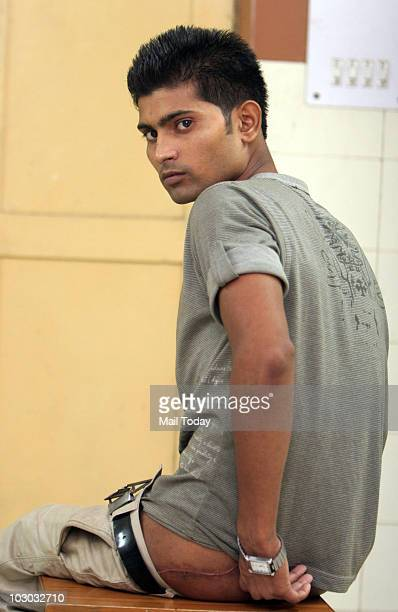 Rajesh Kumar Gautam a 23yearold student who was left with a destroyed hip bone after taking protein supplements for a perfect body poses for a...