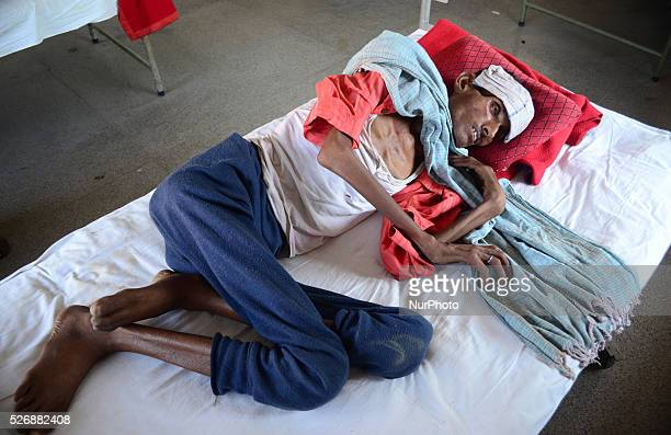 Rambabuaged 52 An indian patient suffering from tuberculosis admitted under treatment in Government tuberculosis hospitaltwo days after World...