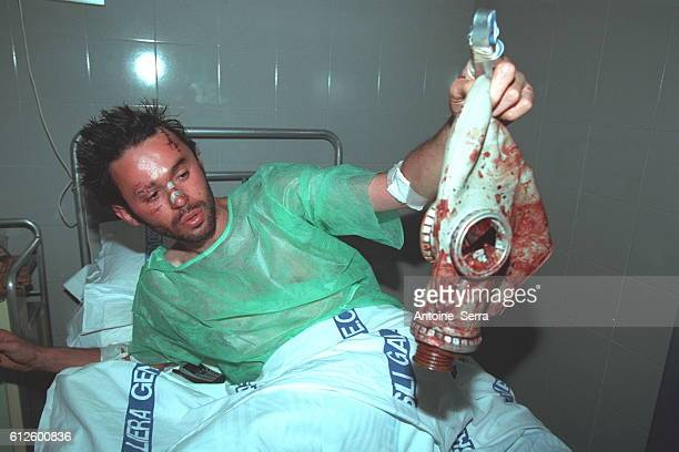 Raphael in the hospital of Genoa after the Police had beaten him up He is holding his gas mask covered in blood