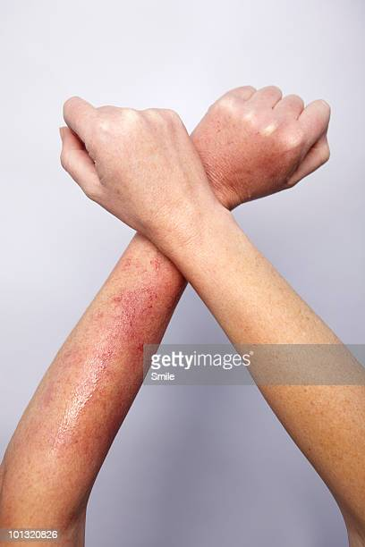 Rash on arm, arms crossed