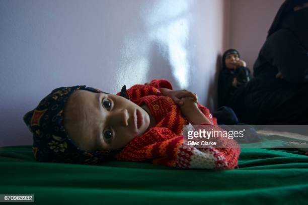 Rasha aged 4 weighs just 6 kg and is being treated at a hospital in central Sana'a According to the latest UN figures Rasha is one of 462000 children...