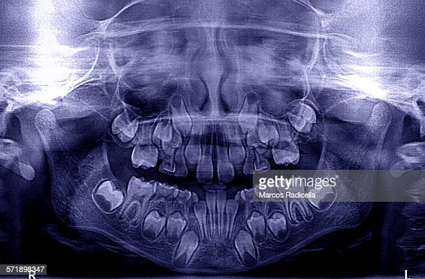 x ray image mouth (child) - radicella stock pictures, royalty-free photos & images