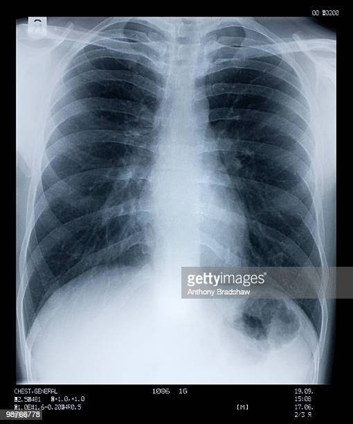 X ray of human chest