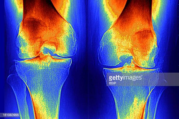 X Ray Of Knees Frontal View