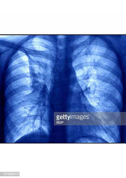 X Ray Of Lungs Bronchitis Characterized By An Inflammation And Congestion Bronchi Accompanied By A Cough Due To Hypersecretion