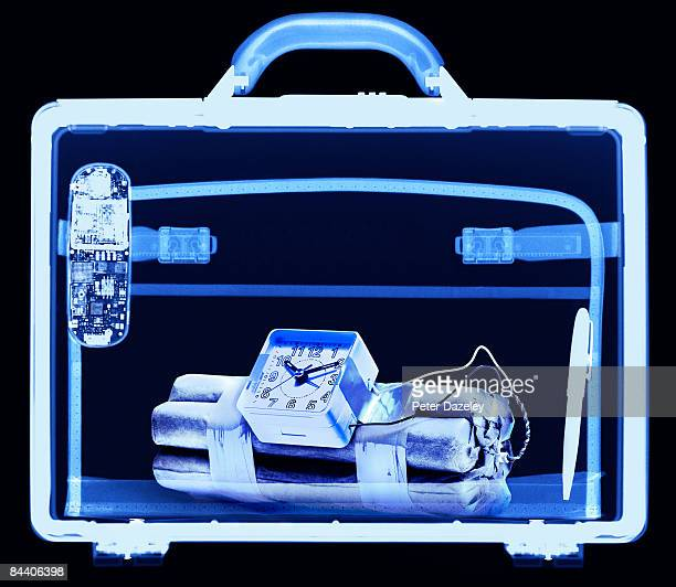 x ray of time bomb in brief case - テロリズム ストックフォトと画像