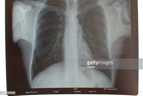 X Ray thorax
