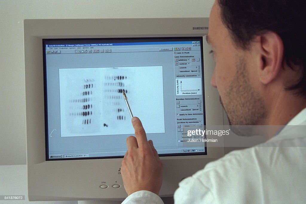 FRENCH NATIONAL DRUG-TESTING CENTER : News Photo