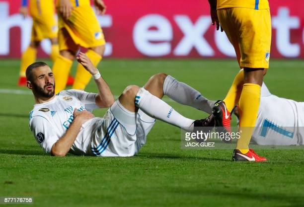 Real Madrid's French forward Karim Benzema reacts following a collision with Real Madrid's Portuguese forward Cristiano Ronaldo during the UEFA...