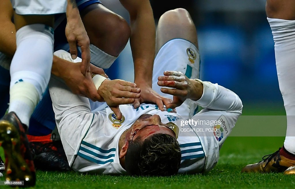 TOPSHOT - Real Madrid's Portuguese forward Cristiano Ronaldo (down) lies on the field after sustaining an injury during the Spanish league football match between Real Madrid CF and RC Deportivo de la Coruna at the Santiago Bernabeu stadium in Madrid on January 21, 2018. /