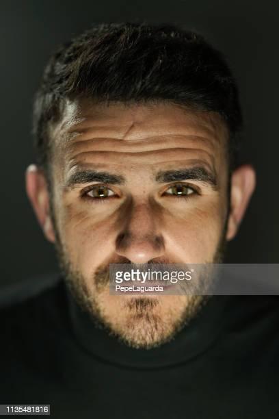 portrait de l'homme réel - cicatrice photos et images de collection
