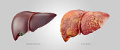 Realistic illustration of healthy and sick human livers