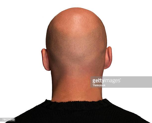 rear view headshot of a man's bald head. - completely bald stock pictures, royalty-free photos & images