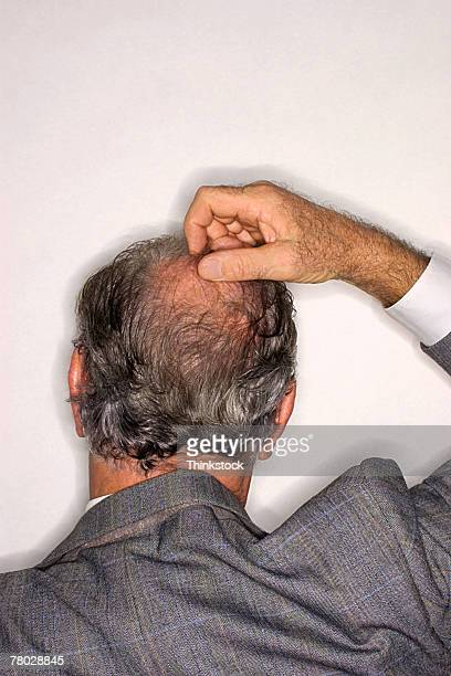 Rear view of a businessman scratching the top of his head.