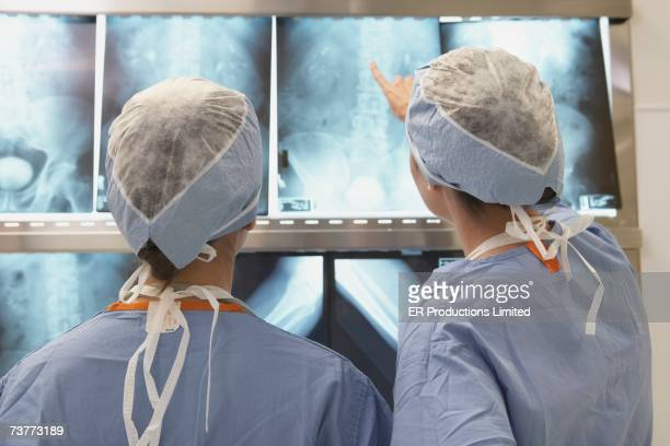 Rear view of doctors looking at x-rays on lightbox
