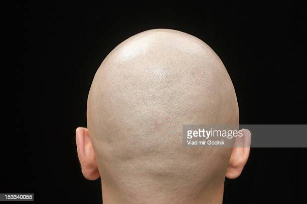 Rear view of the shaved head of a man